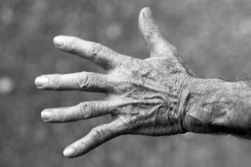skin-hand