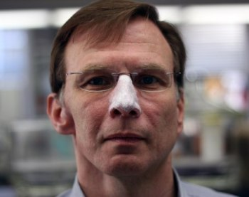 Dr. Pedersen modeling opaque white sunblock on his nose