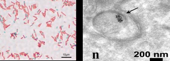 compound vs transmission electron microscope